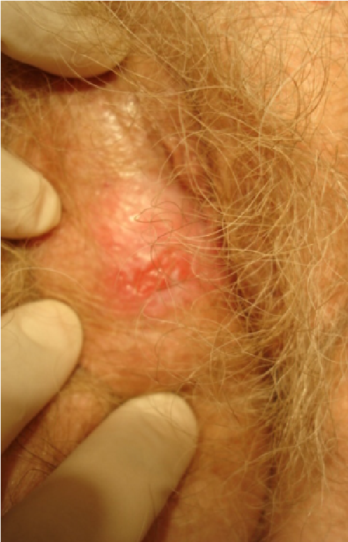 Squamous cell cancer of the vulva