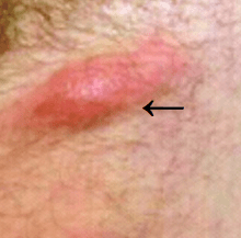 Vaginal pictures sores of