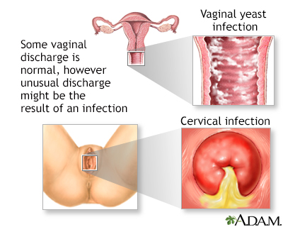Disease from vaginal secretion