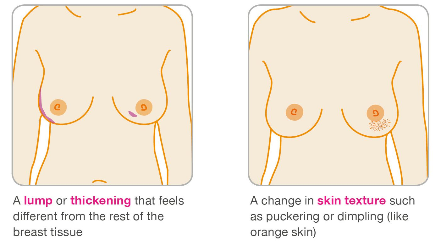 Lumps that are breast cancer