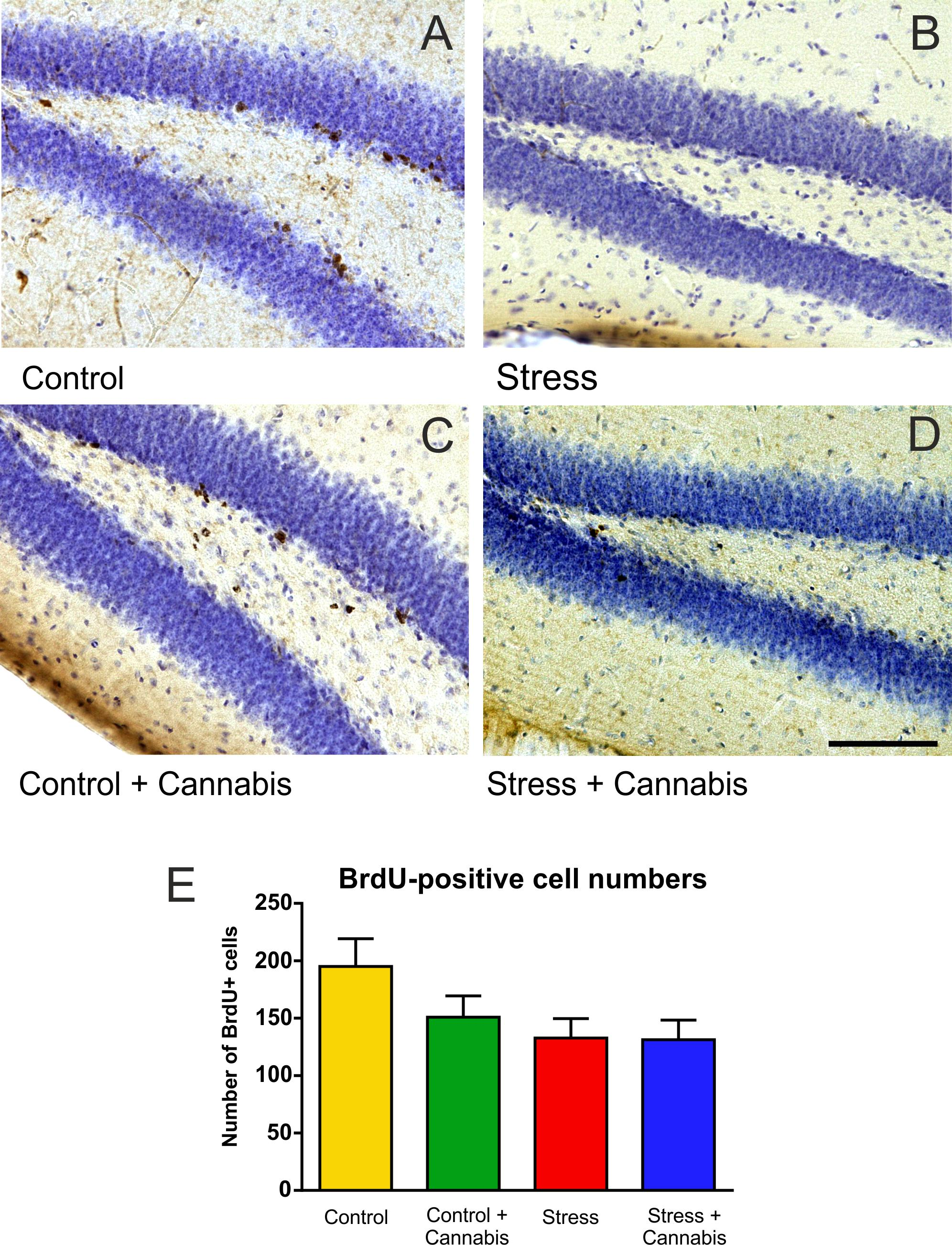 Cannabinoids promote embryonic and adult hippocampus neurogenesis